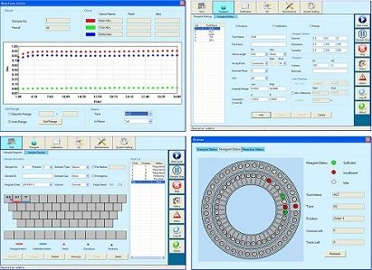 Fully auto chemistry analyzer Advanced operating system